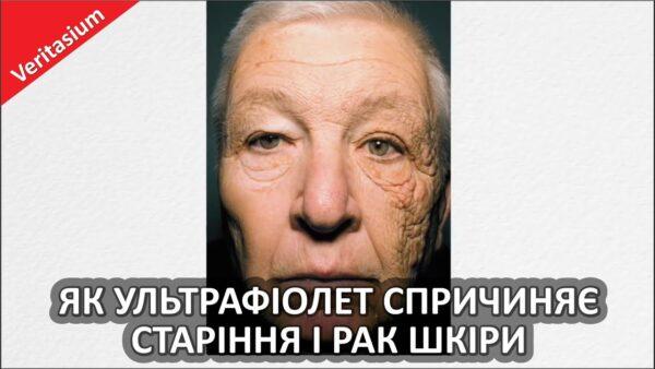 Як ультрафіолет спричиняє старіння і рак шкіри